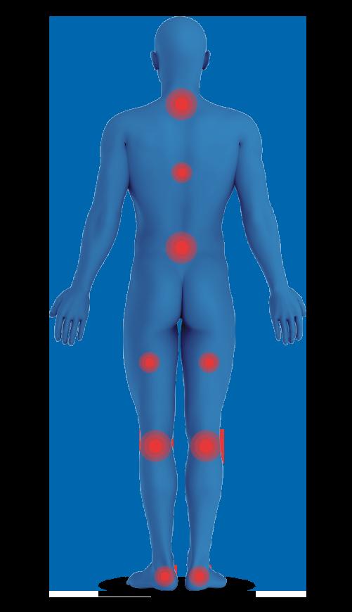 נקודות לחץ בגוף האדם